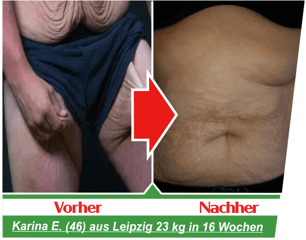 vorher-nachher-karina-haut-abnehmen